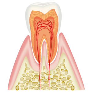エナメル質内のむし歯
